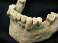 科學家將由牙菌斑一窺口腔菌演化 人類飲食習慣之祕